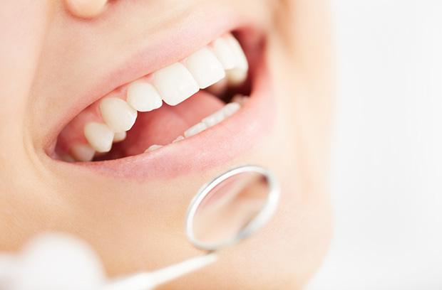 tsatsanis-dental